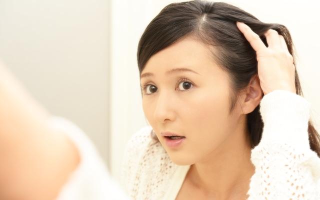 アンバランスな髪の生え方に四苦八苦。消極的な薄毛対策でごまかす日々…【体験談】