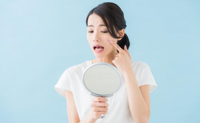 顔にできるシミは主に4種類!できた時期や出現場所でシミのタイプを確認