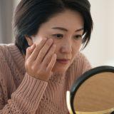女性 老人性色素斑