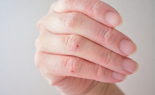 乾燥と新型コロナ対策の消毒液で手がガサガサ!私の手荒れ改善法【体験談】