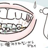 「まるで、ばあちゃんじゃ…」40代の歯列矯正あるある!? #くそ地味系40代独身女子 23