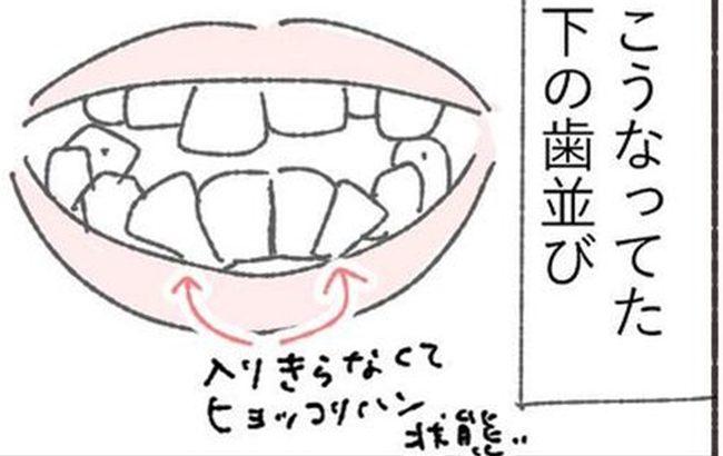 「歯に力が入らない…」自分史上、一番矯正されてる感を味わう40代 #くそ地味系40代独身女子 26