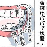 「マジあってよかった…!」歯列矯正中、歯抜け中年女のための神アイテム #くそ地味系40代独身女子 27
